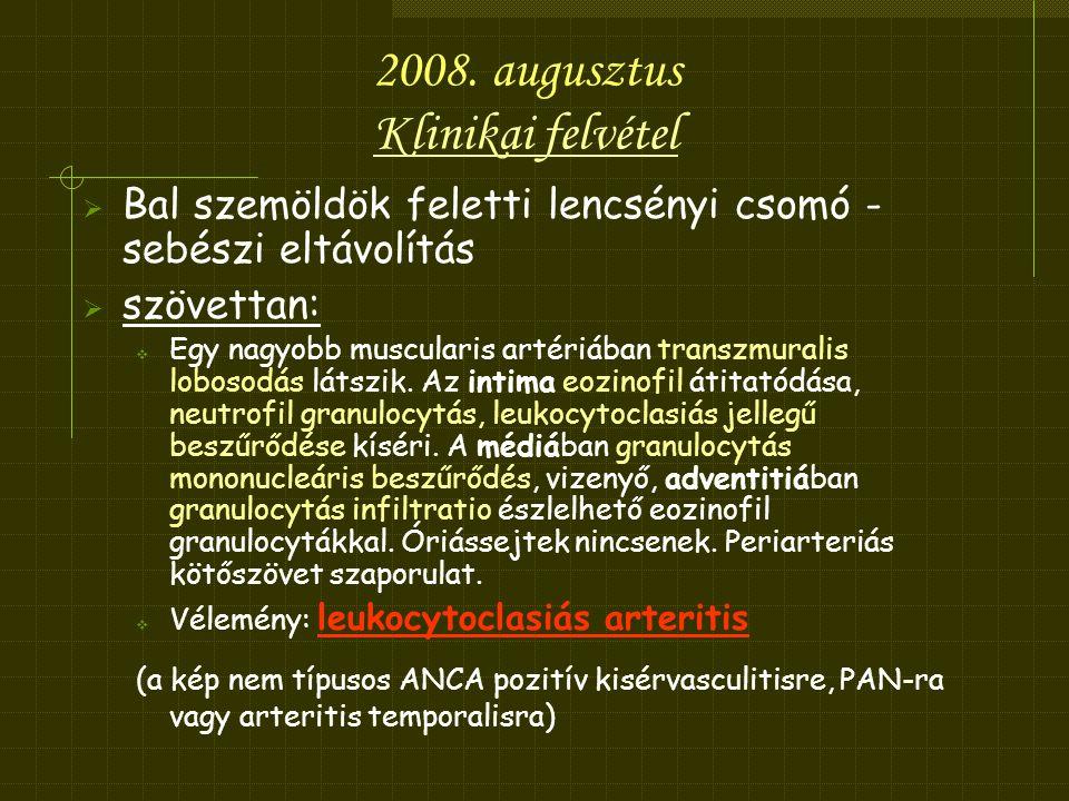 2008. augusztus Klinikai felvétel
