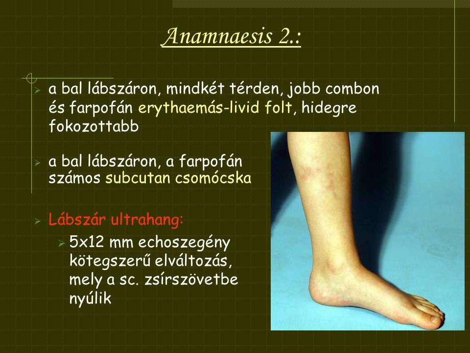 Anamnaesis 2.: a bal lábszáron, mindkét térden, jobb combon és farpofán erythaemás-livid folt, hidegre fokozottabb.