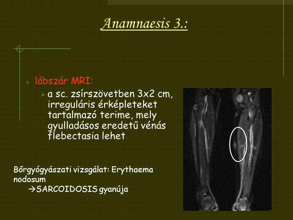 Anamnaesis 3.: lábszár MRI: