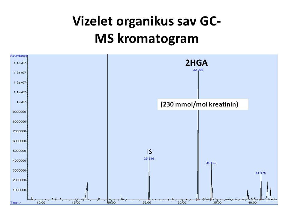 Vizelet organikus sav GC-MS kromatogram