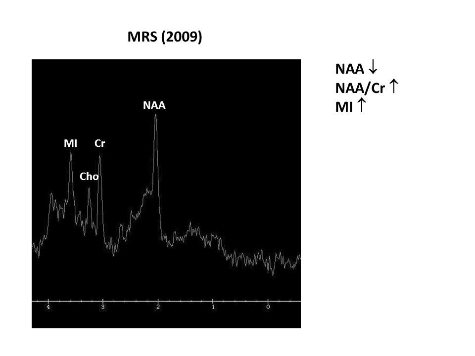 MRS (2009) NAA  NAA/Cr  MI  NAA MI Cr Cho