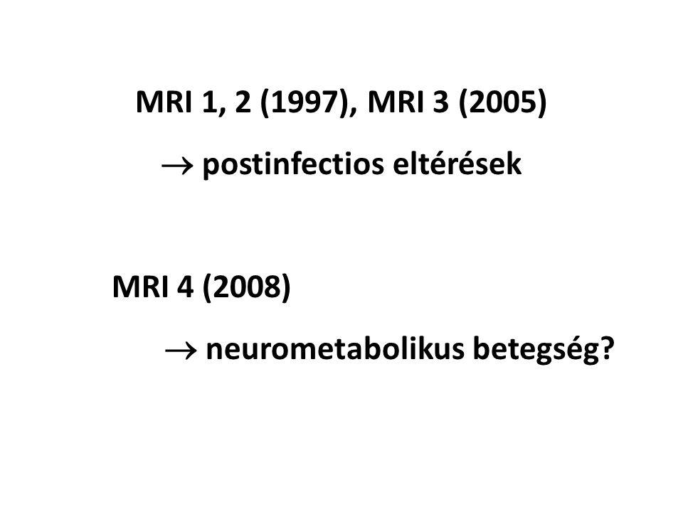 MRI 1, 2 (1997), MRI 3 (2005)  postinfectios eltérések MRI 4 (2008)  neurometabolikus betegség