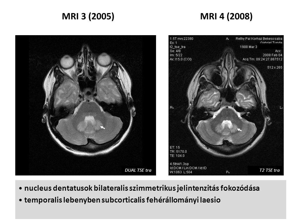 MRI 3 (2005) MRI 4 (2008) DUAL TSE tra. T2 TSE tra. nucleus dentatusok bilateralis szimmetrikus jelintenzitás fokozódása.