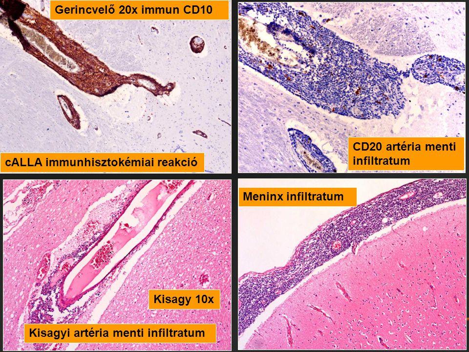 CD20 artéria menti infiltratum cALLA immunhisztokémiai reakció