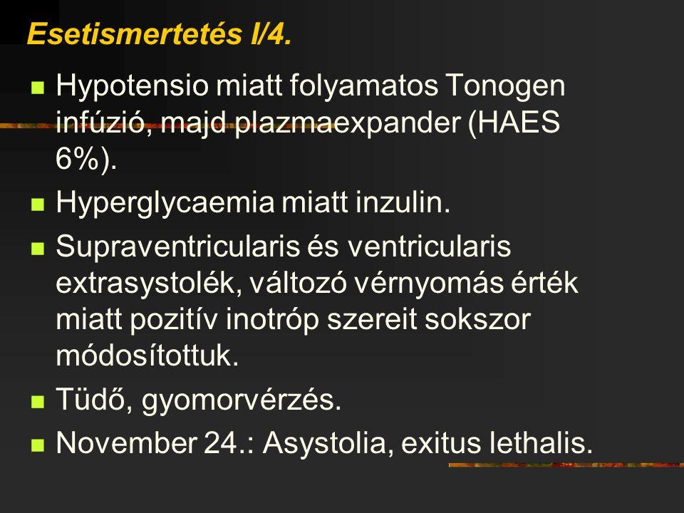 Hyperglycaemia miatt inzulin.
