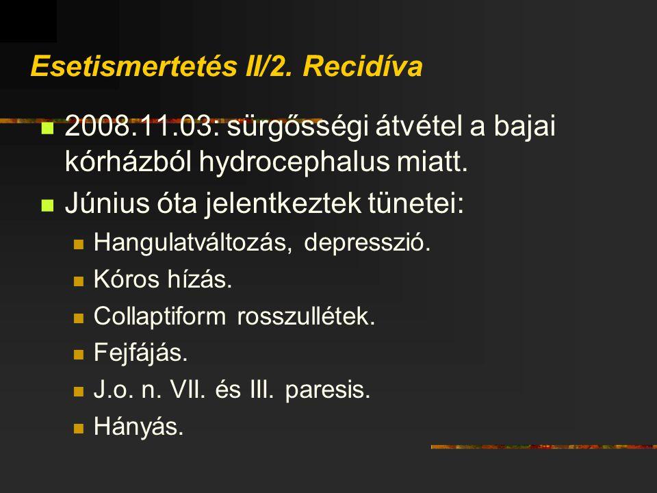 Esetismertetés II/2. Recidíva