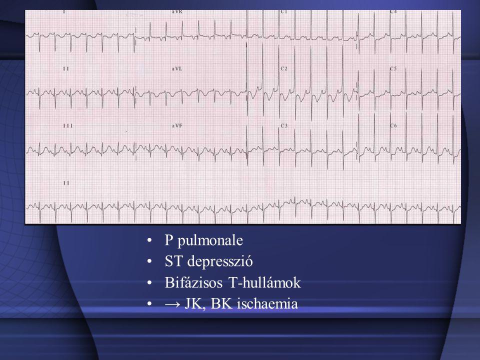 P pulmonale ST depresszió Bifázisos T-hullámok → JK, BK ischaemia