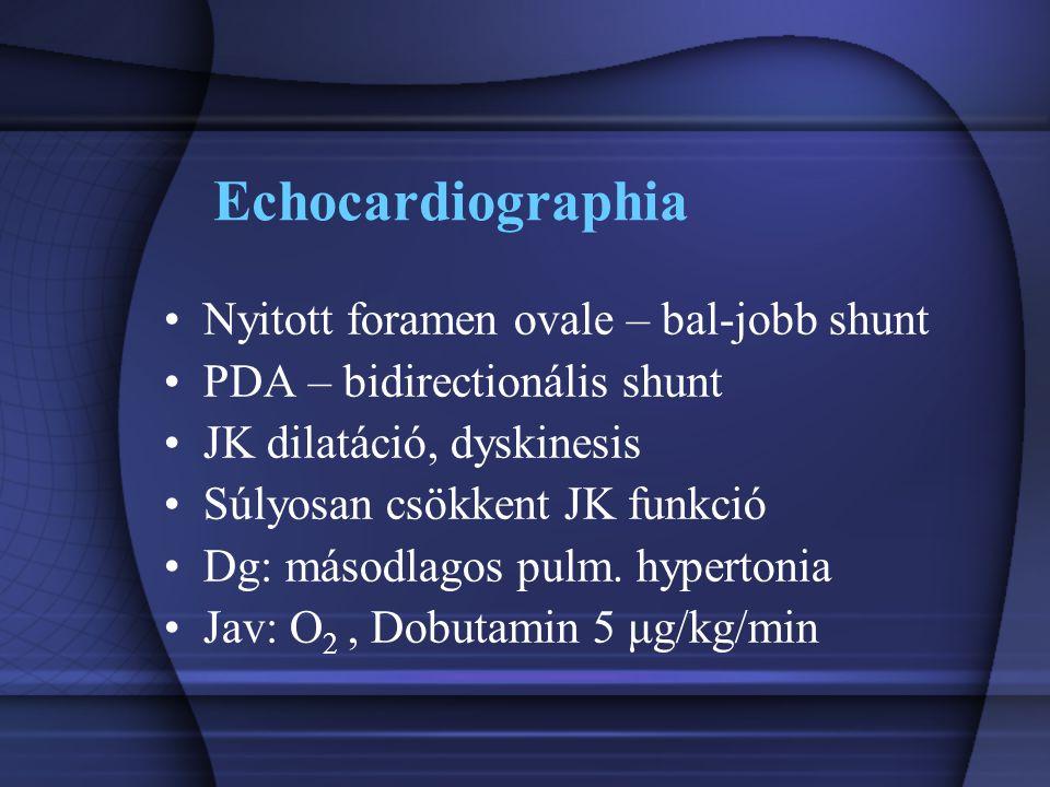 Echocardiographia Nyitott foramen ovale – bal-jobb shunt