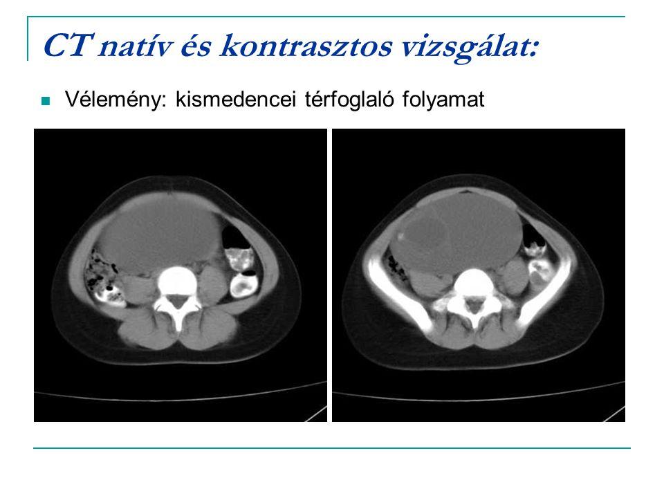 CT natív és kontrasztos vizsgálat: