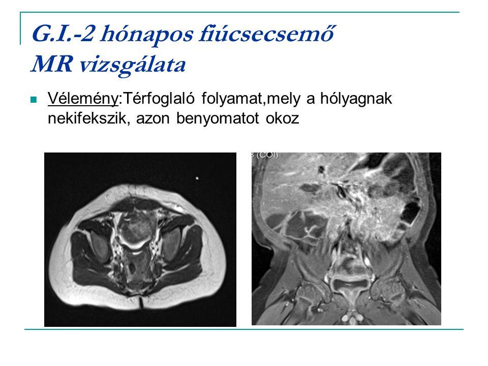 G.I.-2 hónapos fiúcsecsemő MR vizsgálata