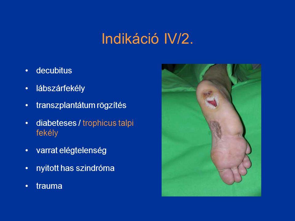Indikáció IV/2. decubitus lábszárfekély transzplantátum rögzítés