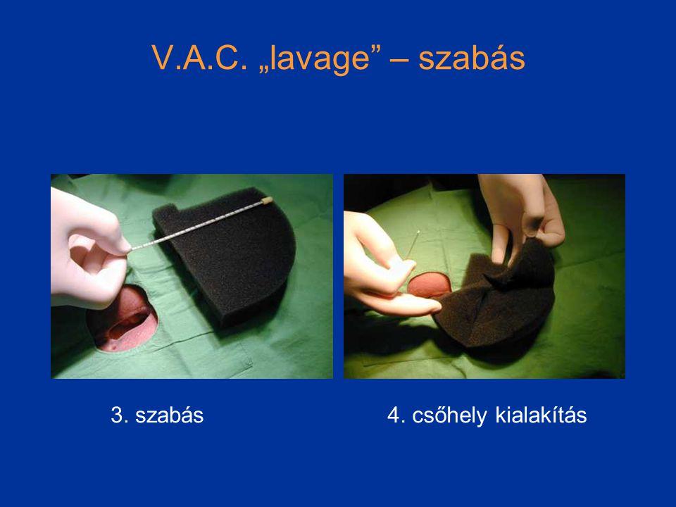 """V.A.C. """"lavage – szabás 3. szabás 4. csőhely kialakítás"""