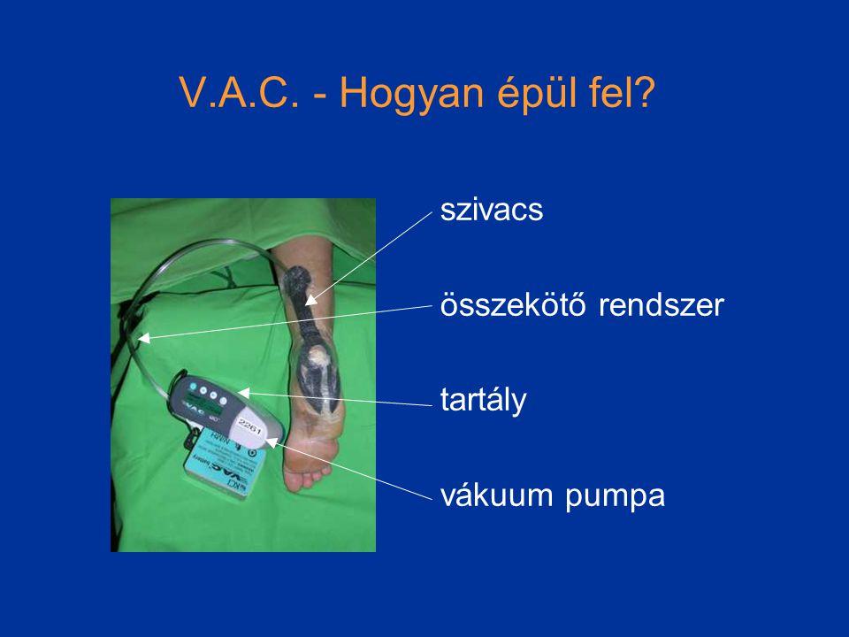 V.A.C. - Hogyan épül fel szivacs összekötő rendszer tartály