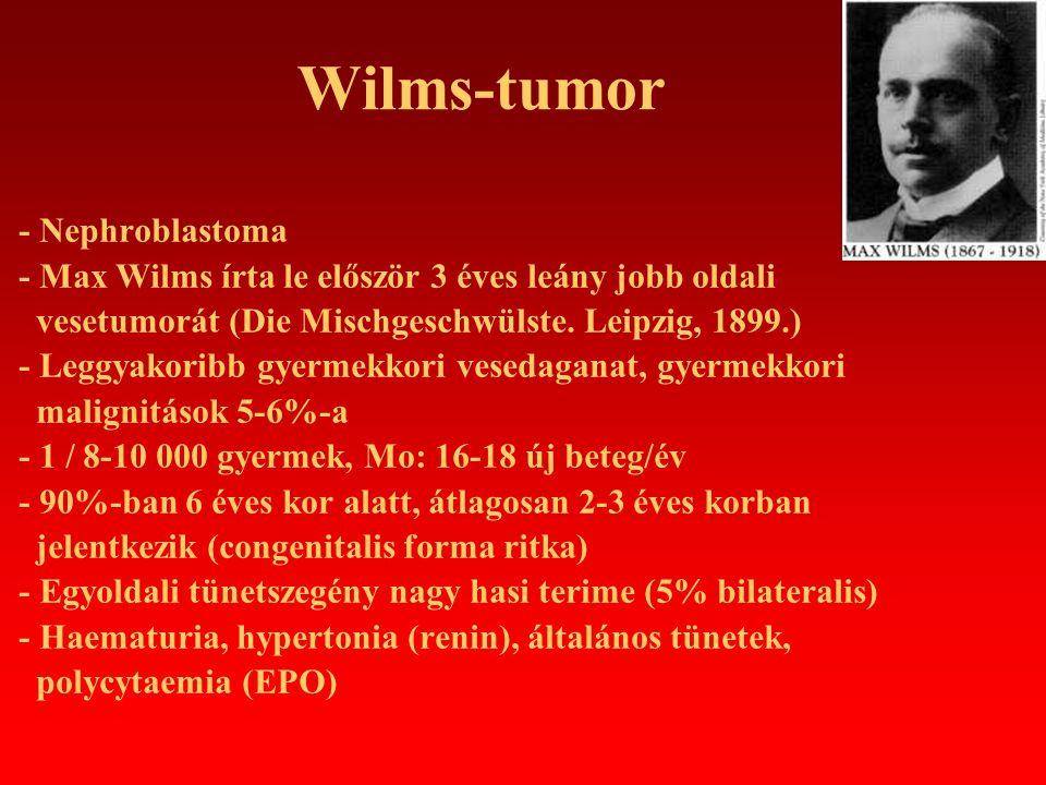 Wilms-tumor - Nephroblastoma