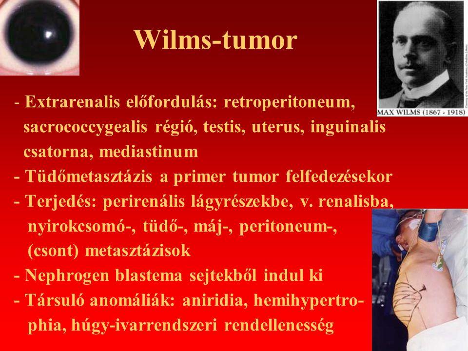 Wilms-tumor - Extrarenalis előfordulás: retroperitoneum,