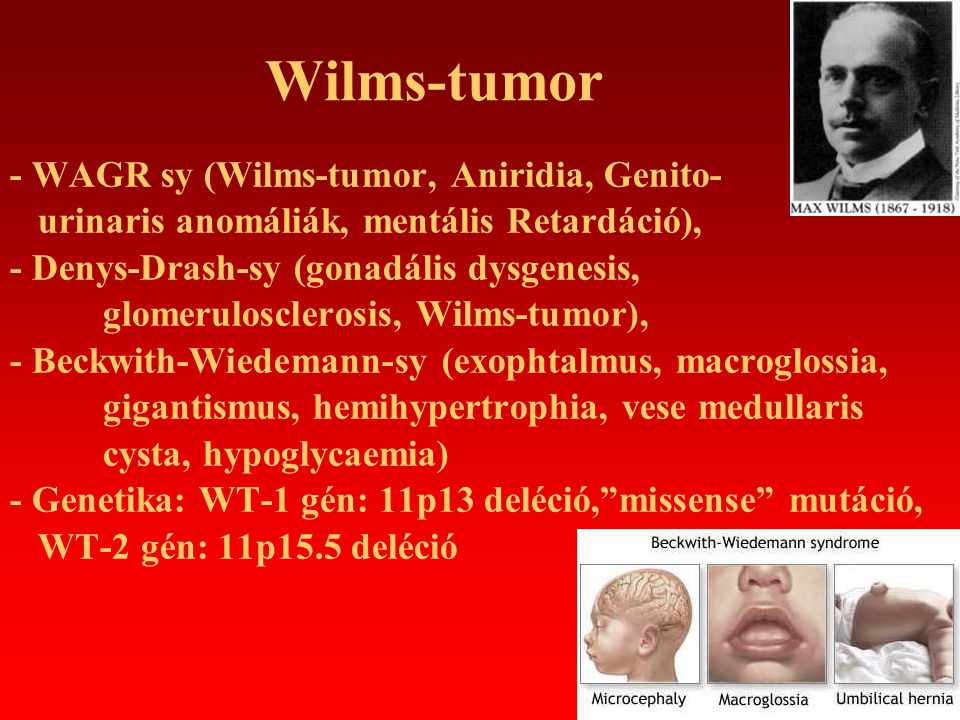 Wilms-tumor - WAGR sy (Wilms-tumor, Aniridia, Genito-