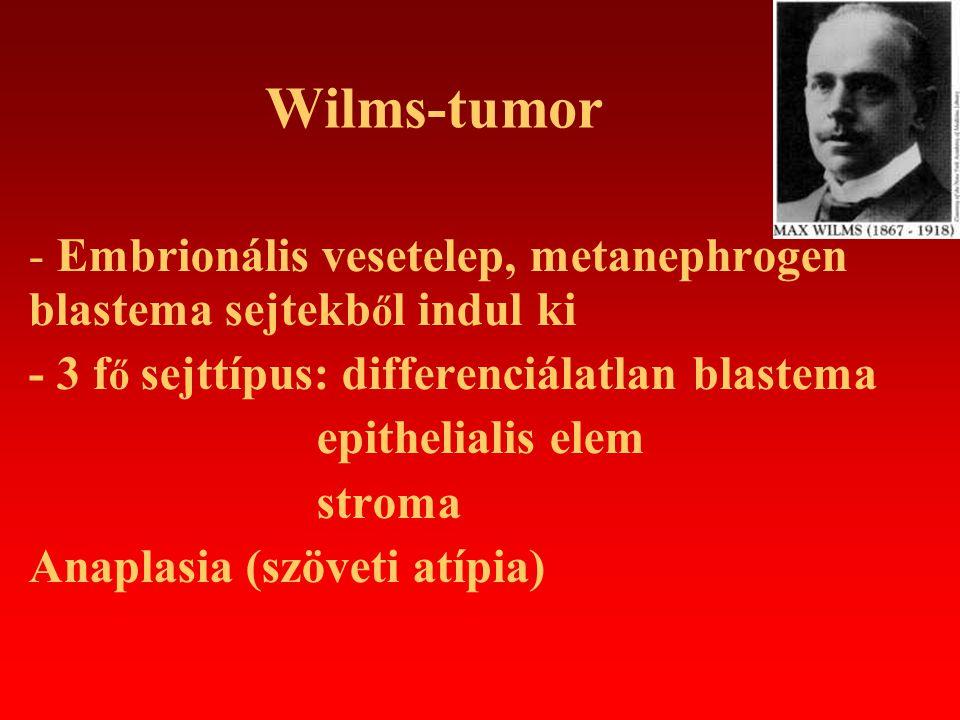 Wilms-tumor - Embrionális vesetelep, metanephrogen blastema sejtekből indul ki. - 3 fő sejttípus: differenciálatlan blastema.