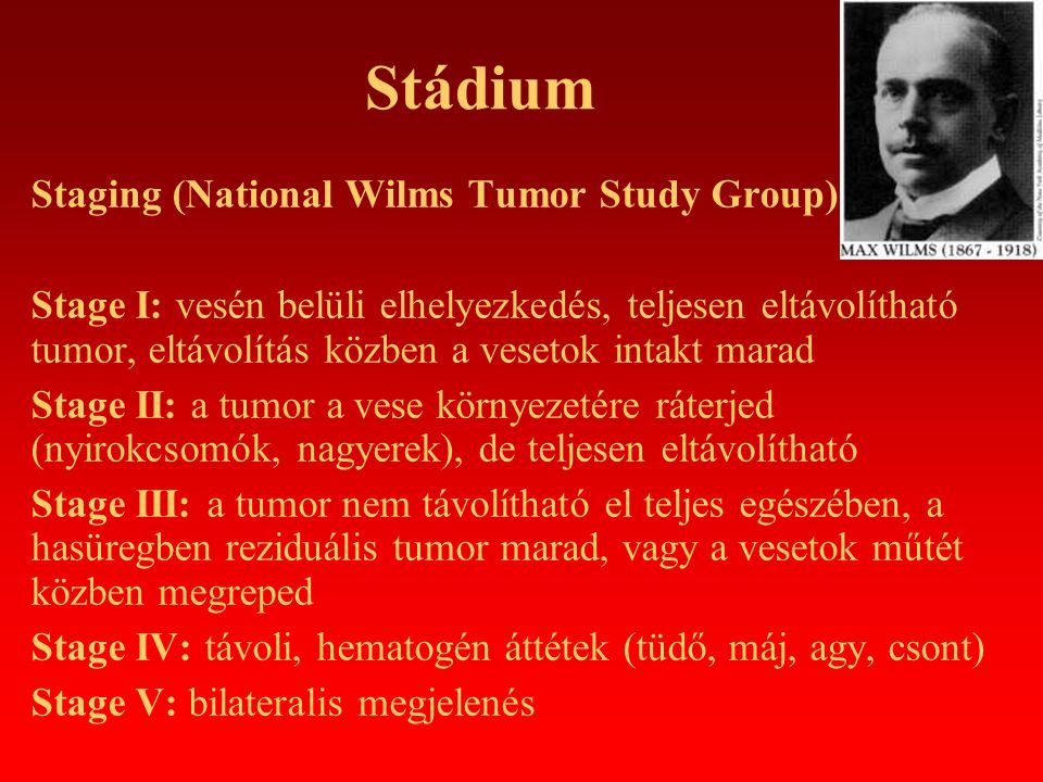 Stádium Staging (National Wilms Tumor Study Group)