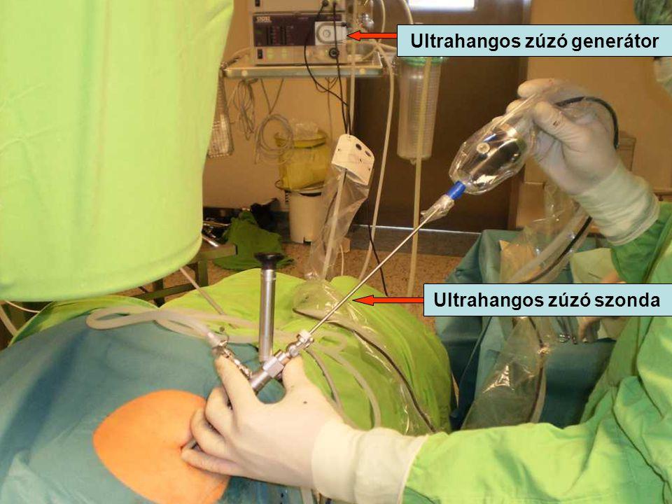 Ultrahangos zúzó generátor Ultrahangos zúzó szonda