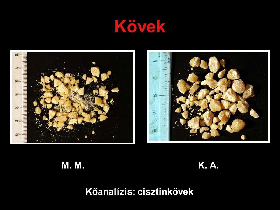 Kövek M. M. K. A. Kőanalízis: cisztinkövek