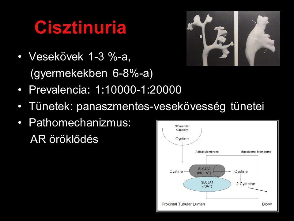 Cisztinuria Vesekövek 1-3 %-a, (gyermekekben 6-8%-a)