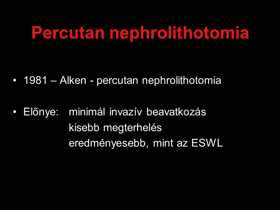 Percutan nephrolithotomia