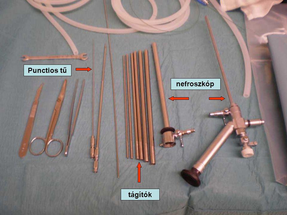 Punctios tű nefroszkóp tágítók