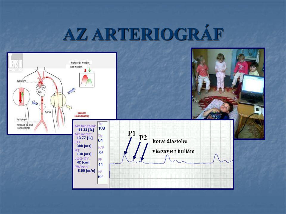 AZ ARTERIOGRÁF P1 P2 korai diastoles visszavert hullám