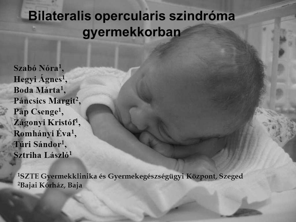 Bilateralis opercularis szindróma gyermekkorban