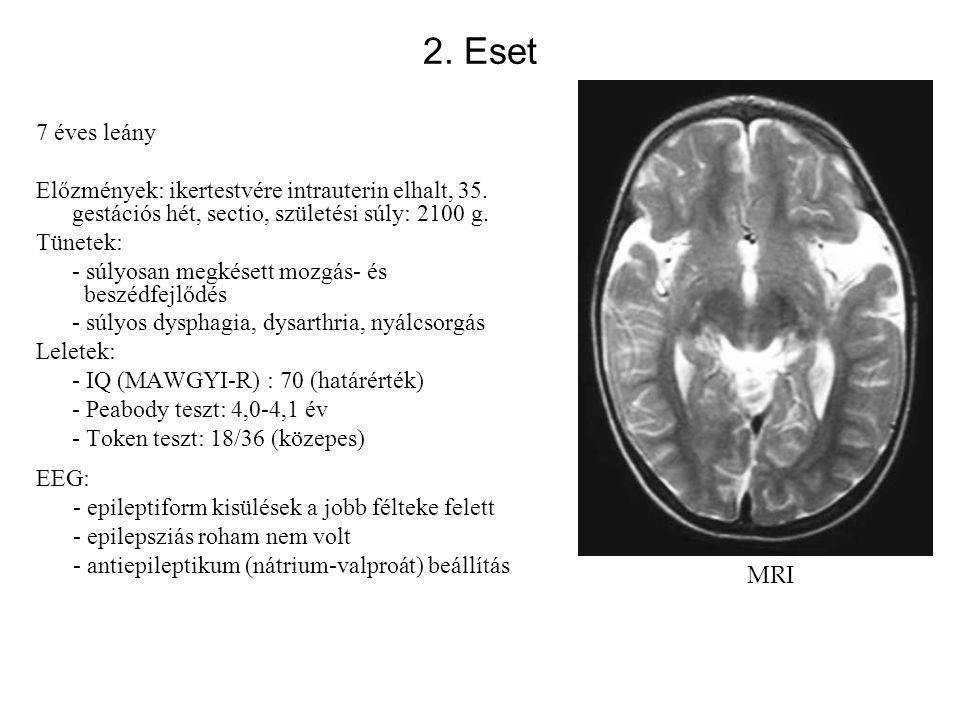 2. Eset 7 éves leány. Előzmények: ikertestvére intrauterin elhalt, 35. gestációs hét, sectio, születési súly: 2100 g.