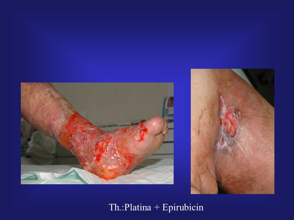 Th.:Platina + Epirubicin