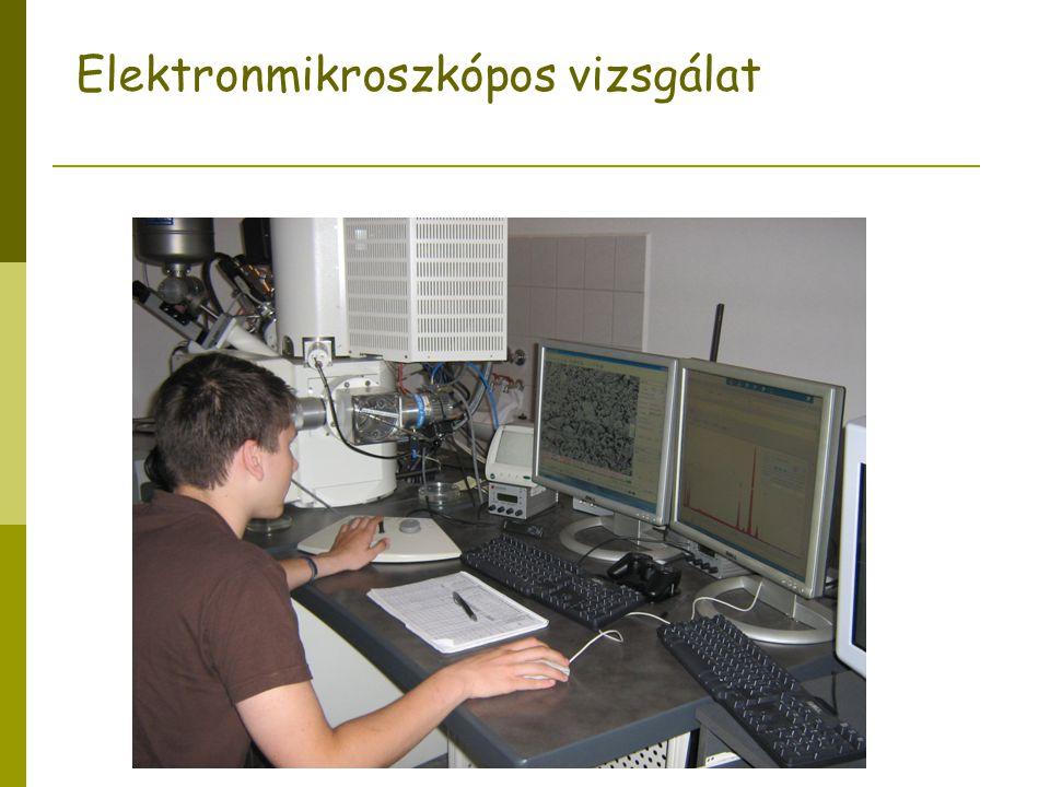 Elektronmikroszkópos vizsgálat