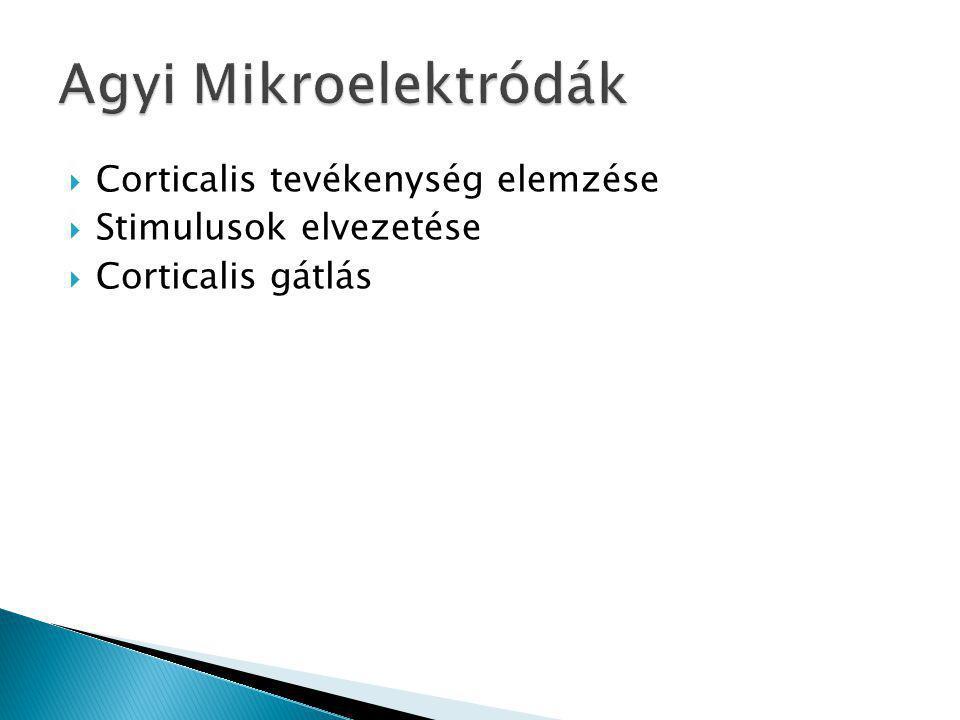 Agyi Mikroelektródák Corticalis tevékenység elemzése