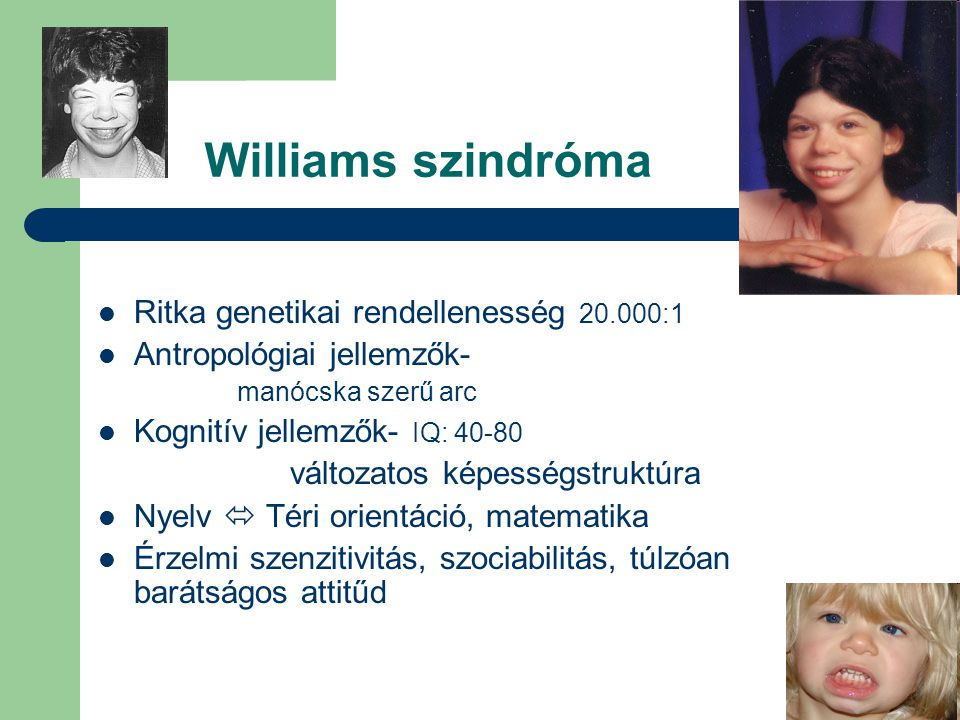 Williams szindróma Ritka genetikai rendellenesség 20.000:1