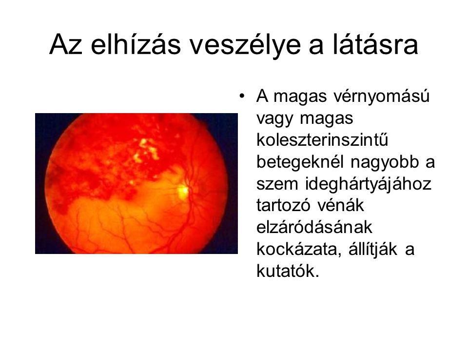 Az elhízás veszélye a látásra