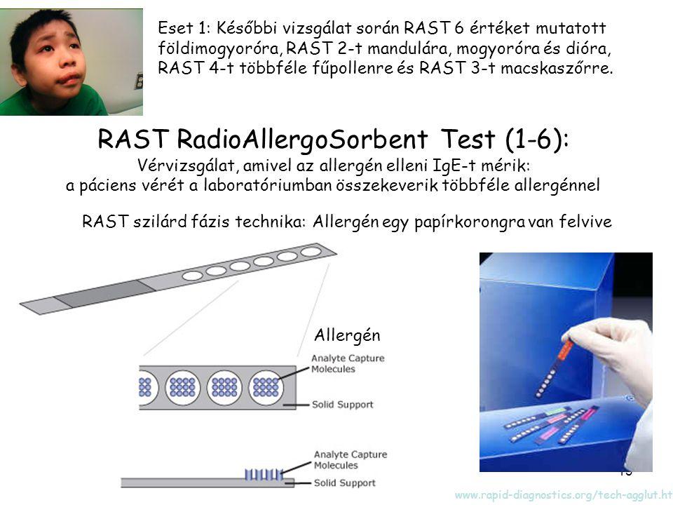 RAST RadioAllergoSorbent Test (1-6):