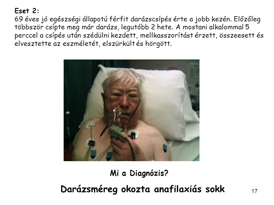 Darázsméreg okozta anafilaxiás sokk