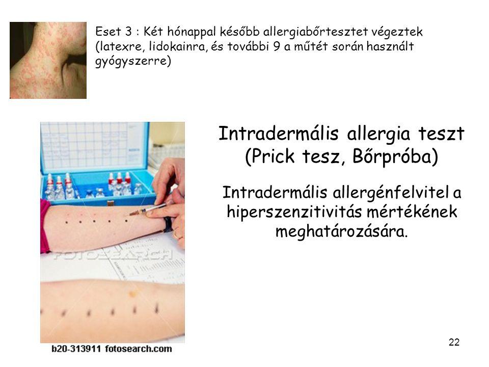Intradermális allergia teszt (Prick tesz, Bőrpróba)