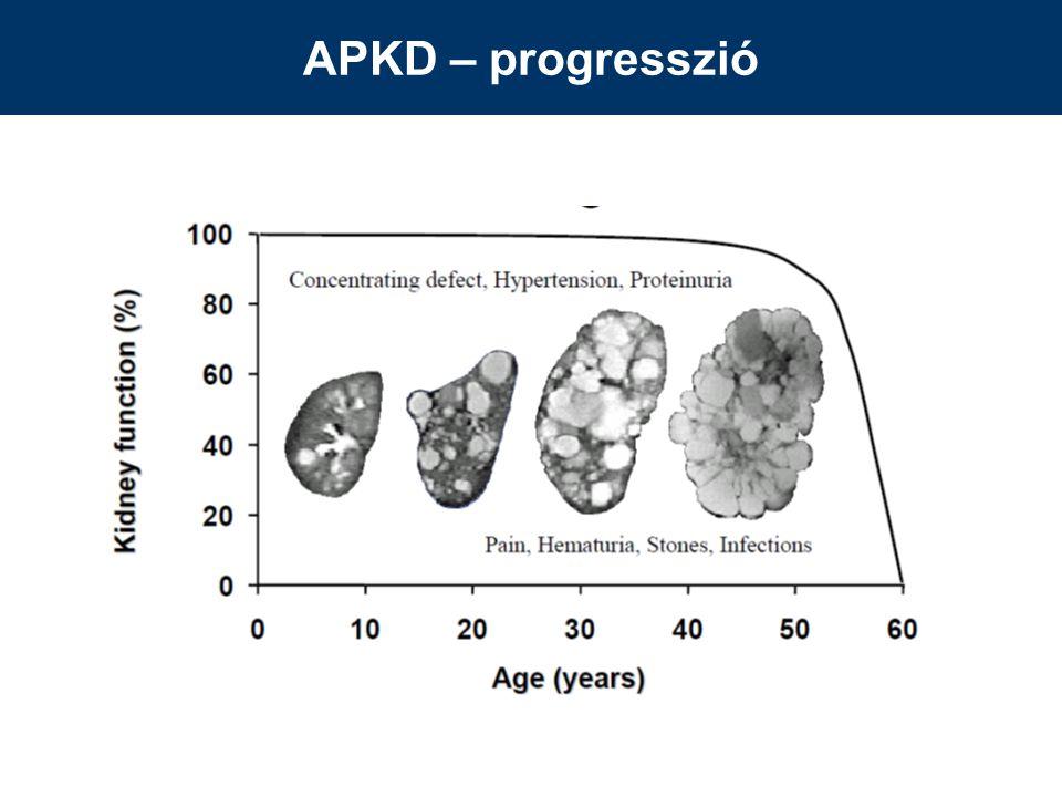 APKD – progresszió