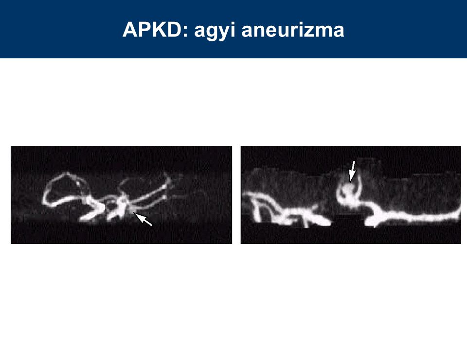 APKD: agyi aneurizma
