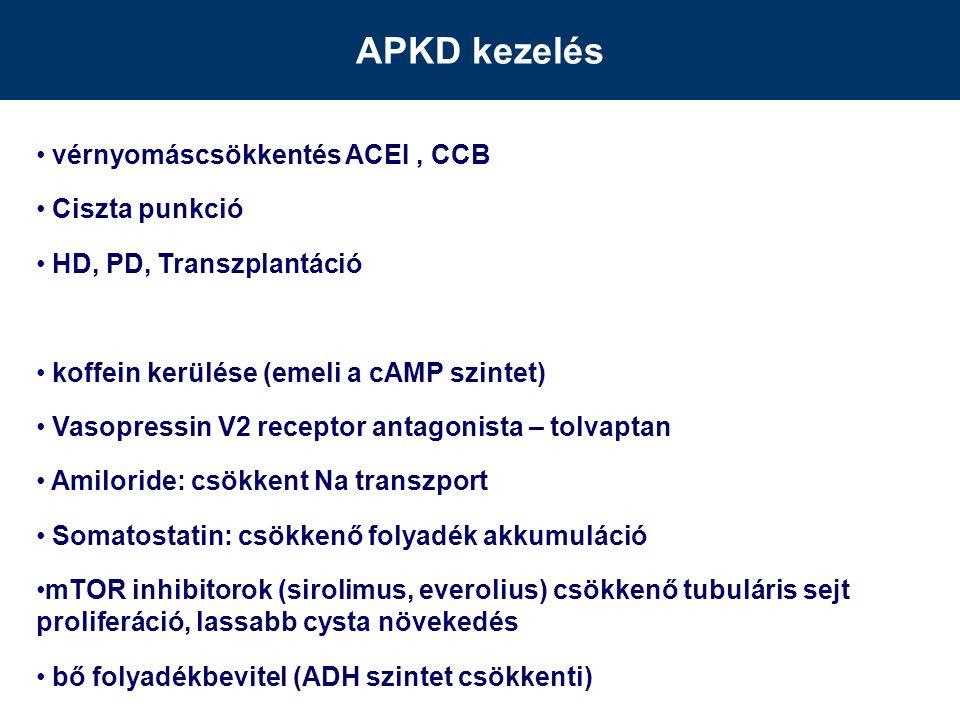 APKD kezelés vérnyomáscsökkentés ACEI , CCB Ciszta punkció