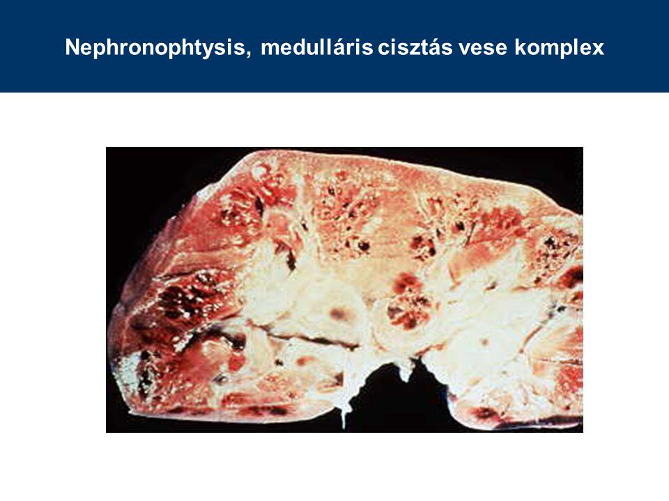Nephronophtysis, medulláris cisztás vese komplex