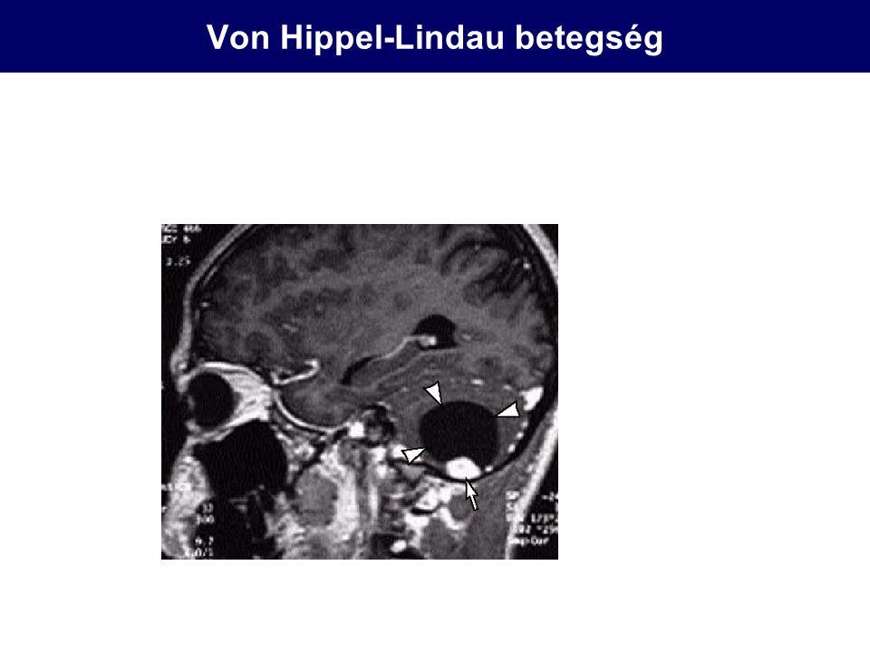 Von Hippel-Lindau betegség