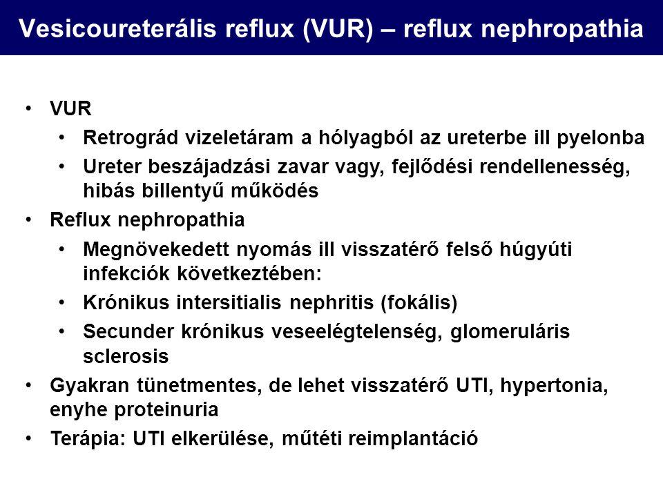 Vesicoureterális reflux (VUR) – reflux nephropathia
