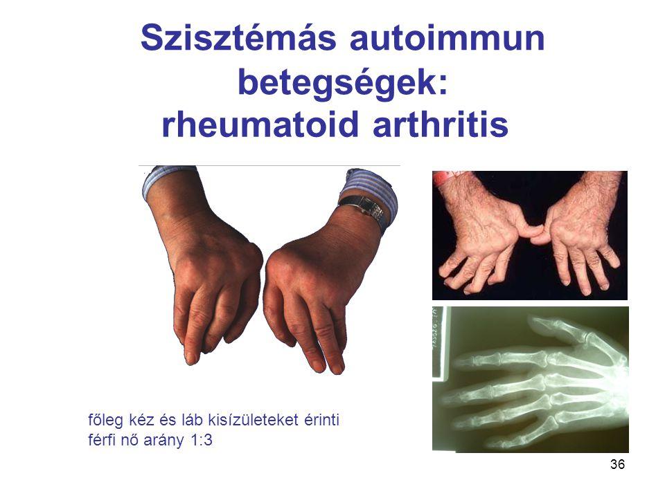 Szisztémás autoimmun betegségek: