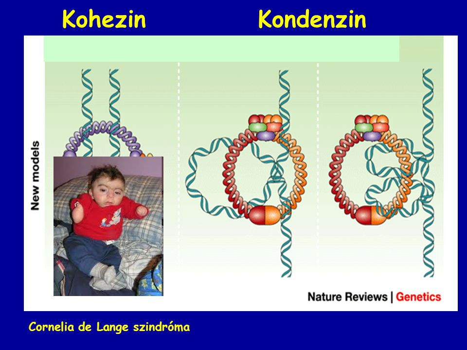 Kohezin Kondenzin Cornelia de Lange szindróma
