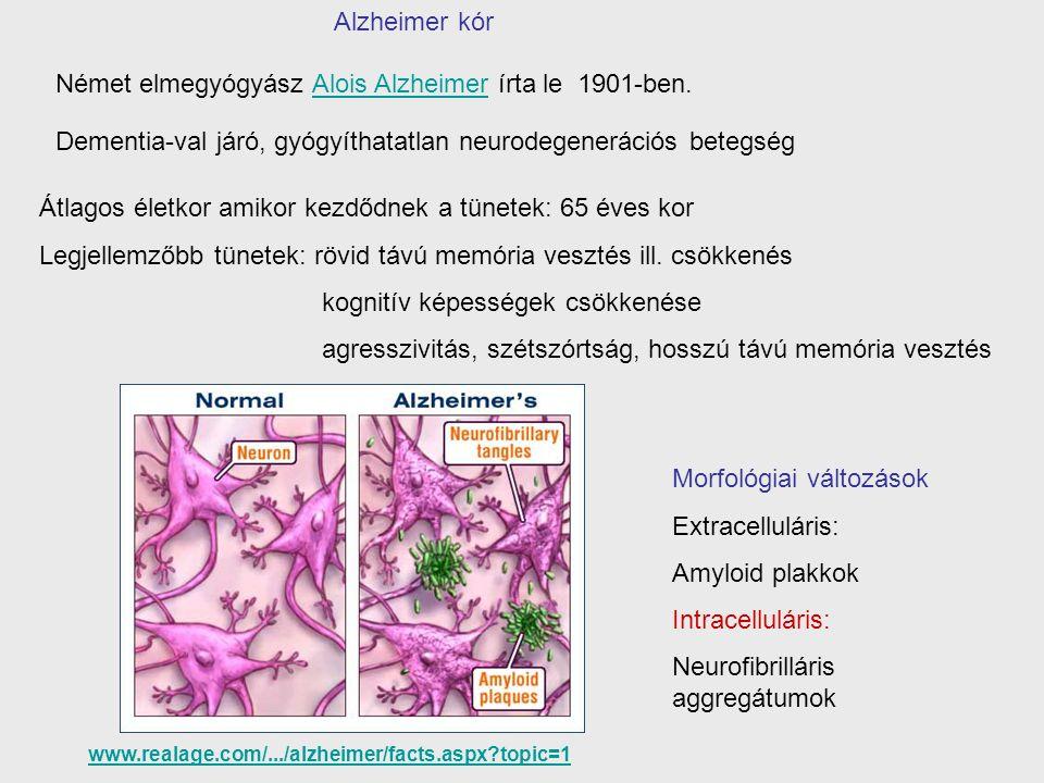 Német elmegyógyász Alois Alzheimer írta le 1901-ben.