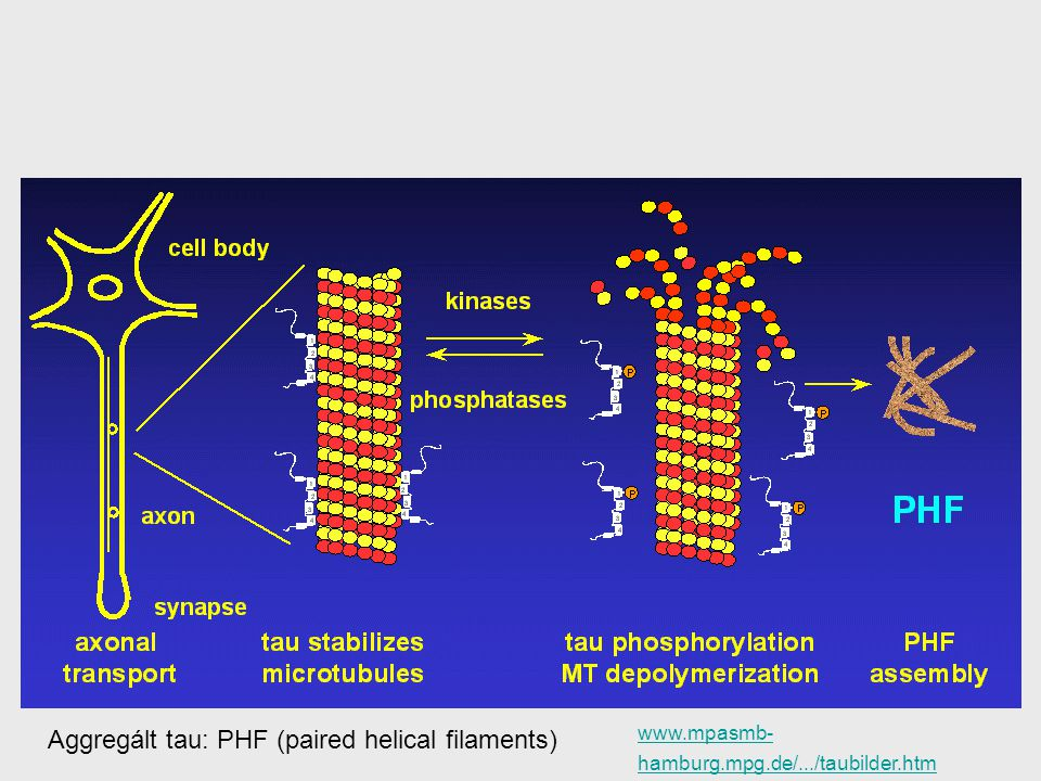 Aggregált tau: PHF (paired helical filaments)