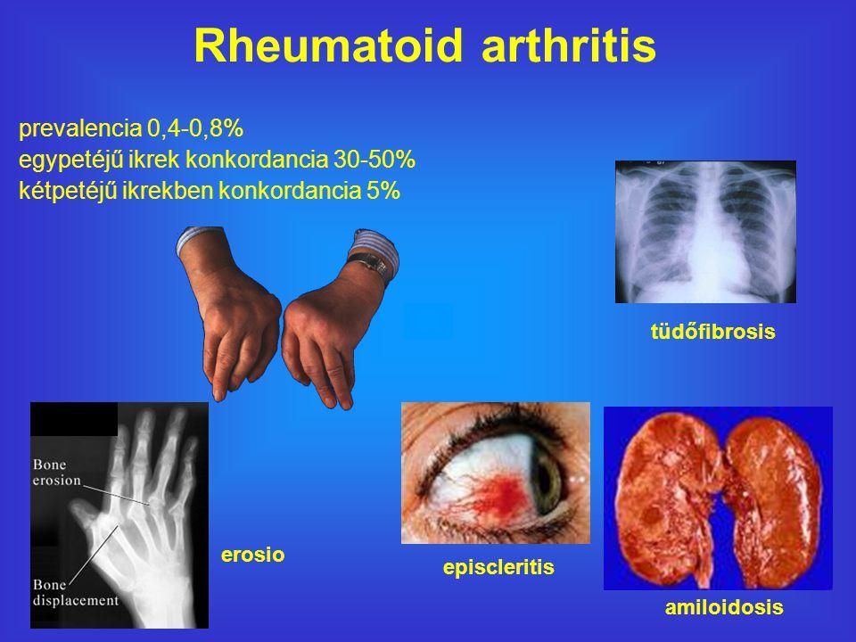 Rheumatoid arthritis prevalencia 0,4-0,8%