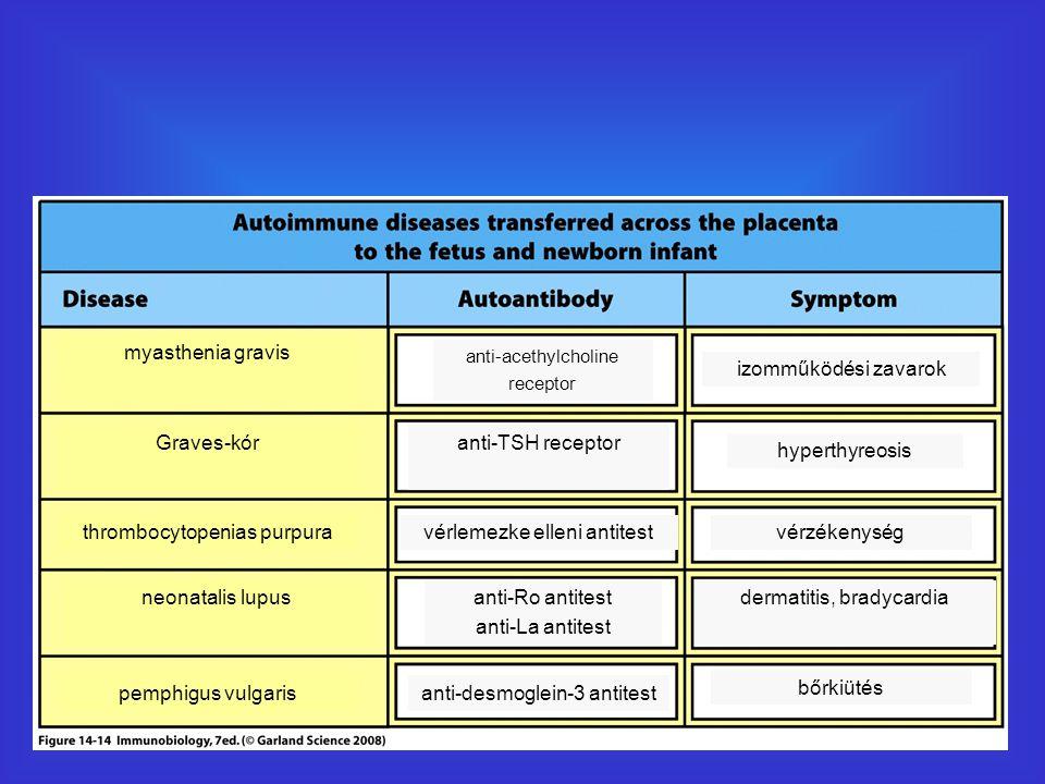 thrombocytopenias purpura vérlemezke elleni antitest vérzékenység
